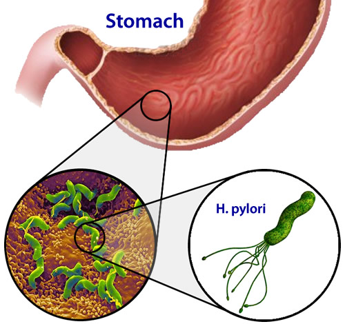 an overview of helicobacter pylori