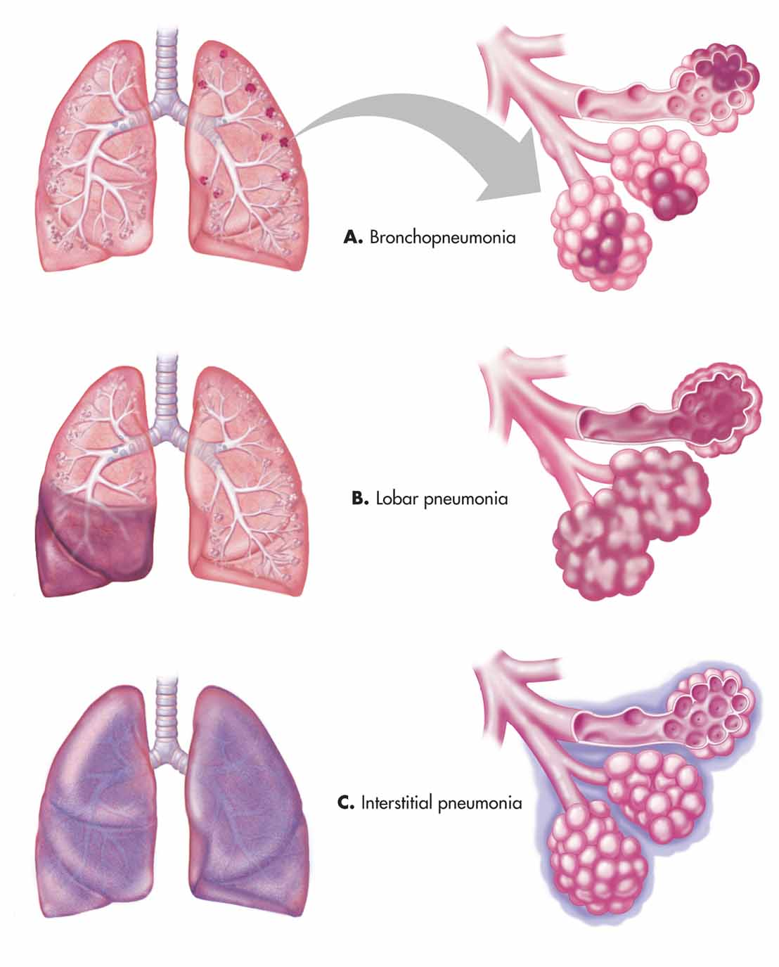 bronchopneumonia case study on Bronchopneumonia, also sometimes known as lobular pneumonia, is a radiological pattern associated with suppurative peribronchiolar inflammation and subsequent patchy consolidation of one or more secondary lobules of a lung in response to bacteria.